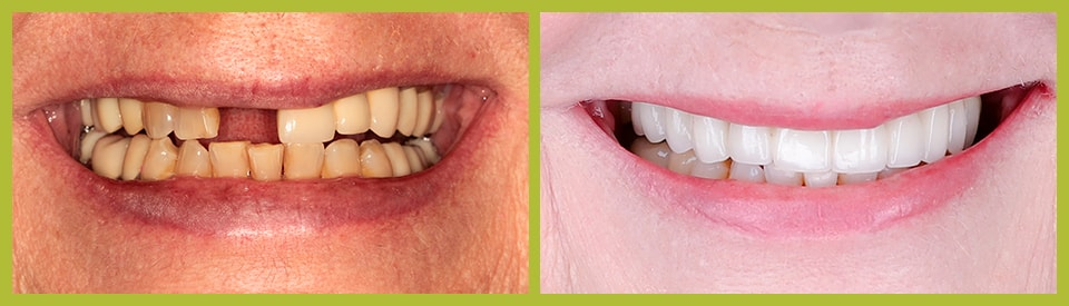 Actual Before and After of porcelain veneers case from our Smile Gallery